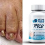 NutraPure Clear Fungus Review – Clear Discount